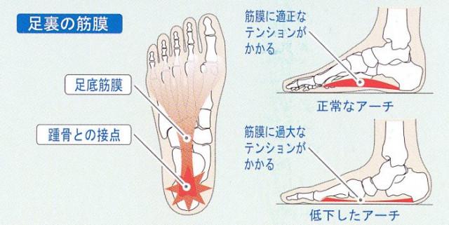 足のアーチと足底筋膜炎の関係