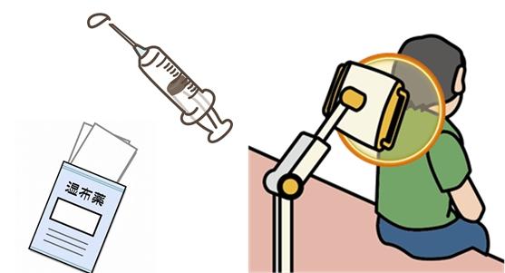 薬、注射、電気による肩の治療