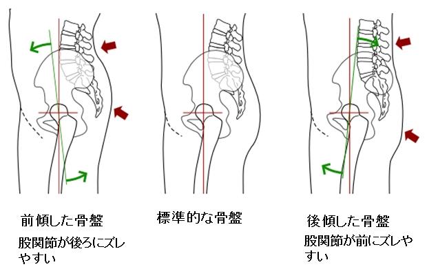 骨盤のゆがみと股関節の痛み