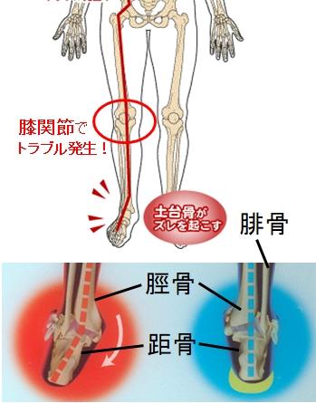 足、足首のゆがみから膝痛がおきる