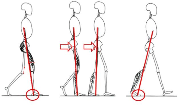 骨盤のゆがみと歩行への影響