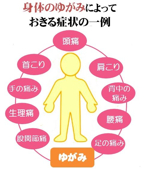 身体のゆがみによって起きる症状の一例