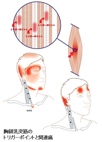 胸鎖乳突筋のトリガーポイントと関連痛